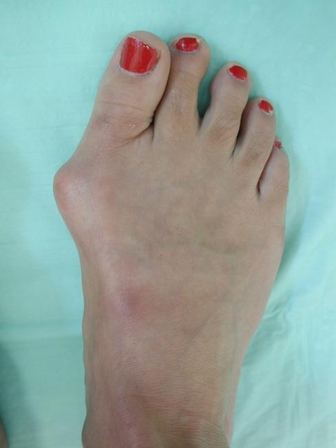 پینه پا چیست