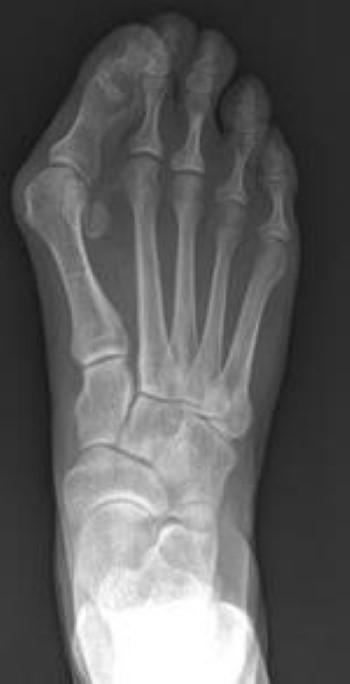 عکس رادیولوژی پینه پا