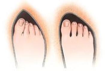 کفش مناسب برای درمان پینه پا