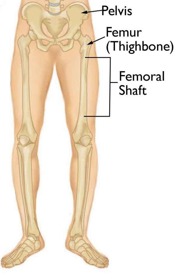 استخوان ران یا تنه فمور