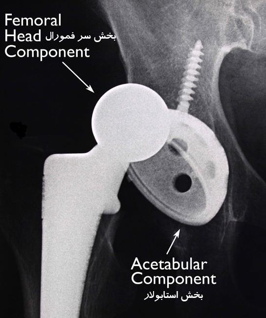 در رفتگی ایمپلنت مفصل ران