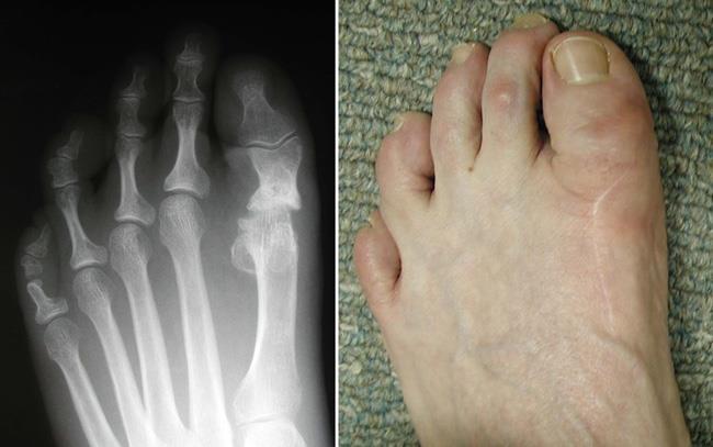 آرتروپلاستی برشی برای درمان پینه پا