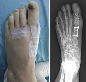 جراحی پینه پا