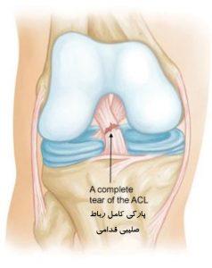 پارگی نسبی رباط صلیبی قدامی (ACL)