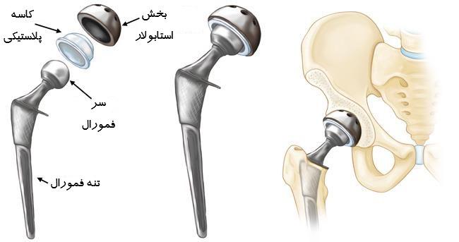 تعویض کامل مفصل ران