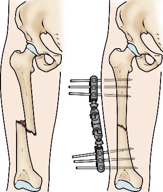 جراحی شکستگی استخوان ران