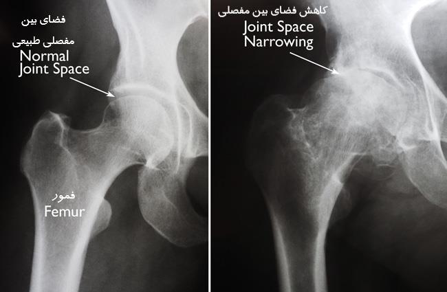 عکس رادیولوژی مفصل ران