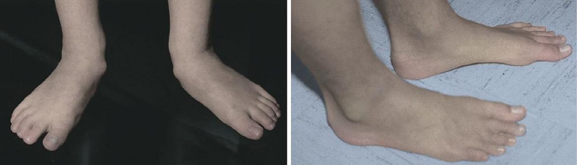 درمان صافی کف پای کودکان