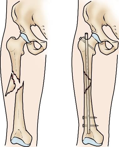 میله گذاری برای شکستگی استخوان ران