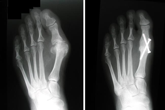 جراحی آرترودز برای درمان پینه پا