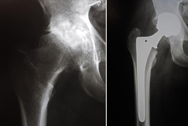 عکس رادیولوژی بعد از تعویض مفصل ران