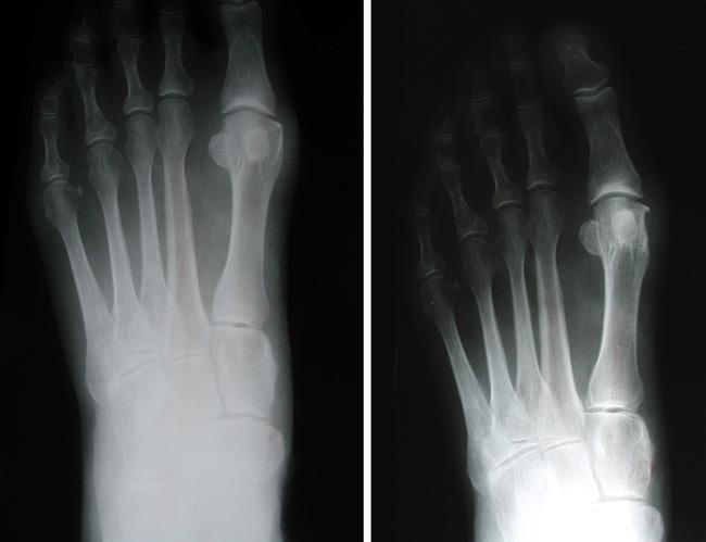 جراحی اگزوستکتومی برای درمان پینه پا
