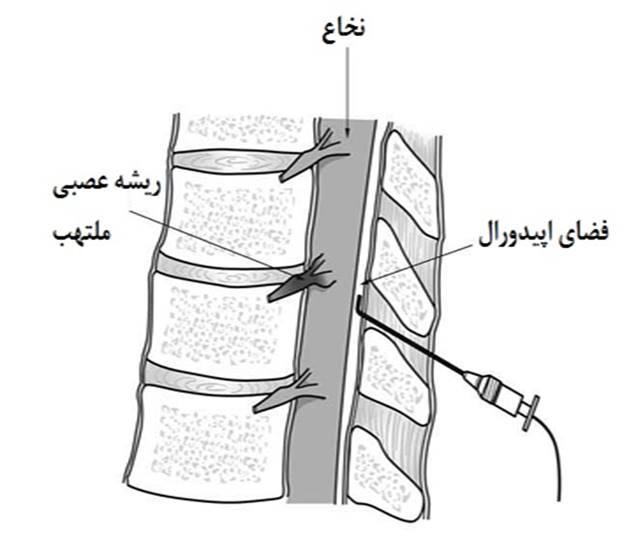 تزریق اپیدورال در ستون فقرات گردنی