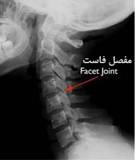 عکس رادیولوژی از یک مفصل فاست گردنی