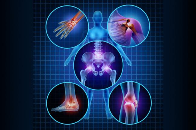 انواع آرتروز یا استئوآرتریت