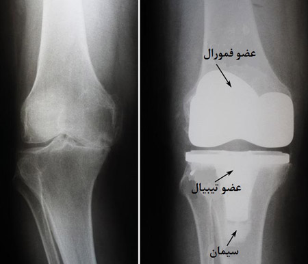 عکس رادیولوژی زانو