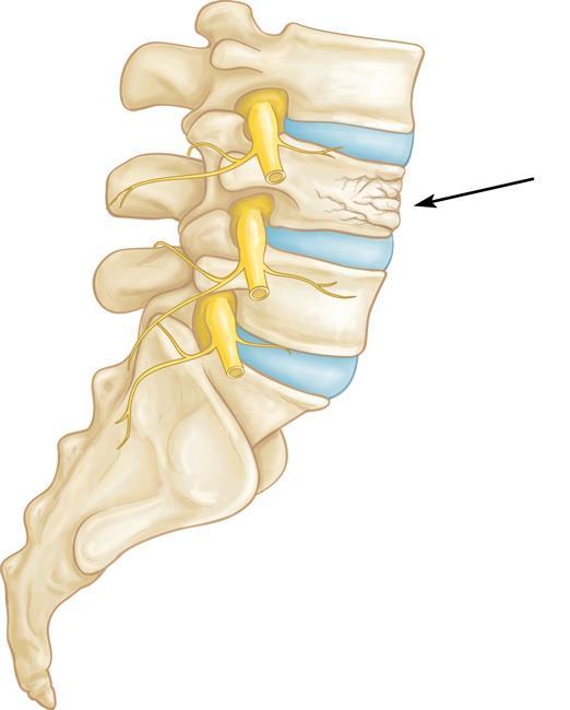 شکستگی ستون فقرات به دلیل پوکی استخوان