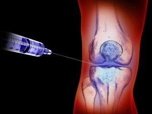 ویسکوساپلیمنت برای درمان آرتریت زانو