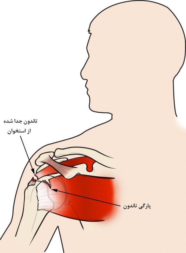 ساختار (آناتومی) شانه شما از سه استخوان تشکیل شده است: استخوان بازو (Humerus)، تیغه شانه (استخوان کتف)، و استخوان یقه (استخوان ترقوه). شانه یک مفصل گوی و حفره (سوکت) است: گوی یا سر استخوان بازو (استخوان هومروس) در حفره (سوکت) کم عمق تیغه شانه فیت میشود.