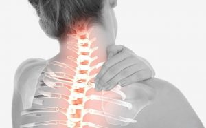 آرتریت گردن