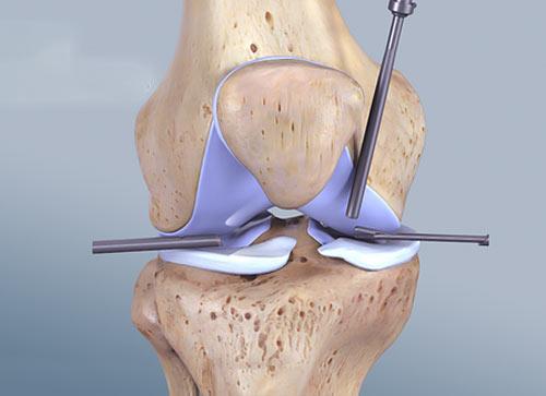 آرتروسکوپی برای درمان آرتروز