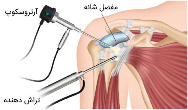 آرتروسکوپی شانه