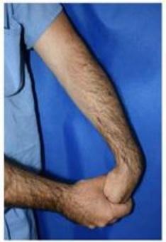 درمان آرنج تنیس بازان