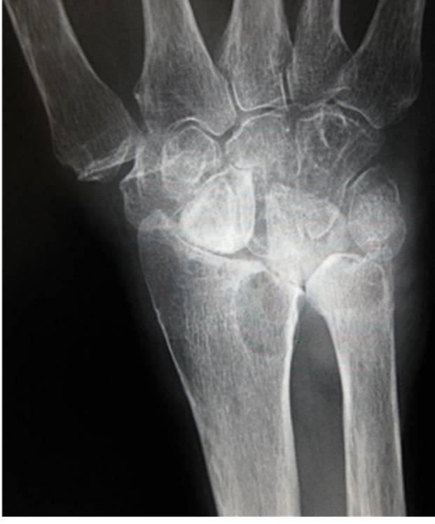رماتیسم مفصل مچ دست