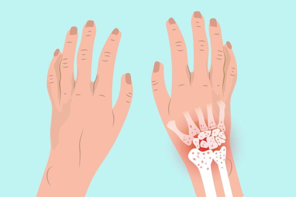 آرتروز آرتروز به دلیل «ساییدگی و پارگی» طبیعی در مچ دست بهوجود میآید، بهویژه در افرادی که سابقه خانوادگی آرتروز دارند. برای بسیاری از افراد بعد از رسیدن به میانسالی، این یک مشکل شایع است ولی در افراد جوان نیز اتفاق میافتد. در آرتروز، غضروف مفصلی صاف و لغزنده که انتهای استخوانها را میپوشاند بهتدریج ساییده شده و از بین میرود. از آنجا که سطح غضروف از خون کافی برخوردار نیست، وقتیکه آسیب ببیند یا دچار پارگی شود توانایی کمی برای درمان و تولید مجدد سلولهای خود را دارد. هرچه غضروف از بین میرود، فرسوده و زبرتر میشود، و فضای محافظ بین استخوانها کاهش مییابد. این میتواند باعث ساییدگی استخوان روی استخوان و منجر به درد و سفتی در مفصل شود.