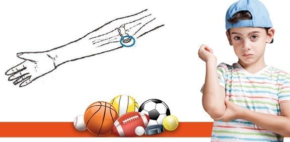 صدمات پرتابی در آرنج کودکان