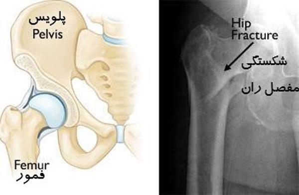 عکس رادیولوژی شکستگی مفصل ران