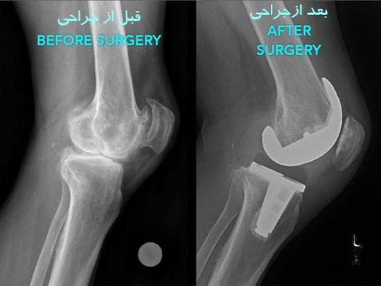 آرتروپلاستی زانو (بازسازی مفصل)