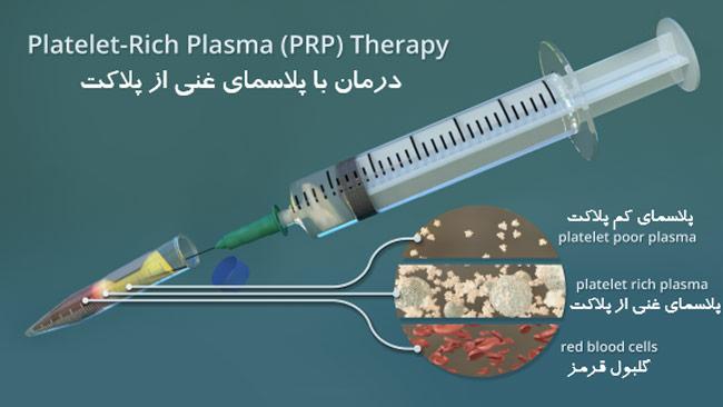 تزریق PRP برای درمان زانو درد
