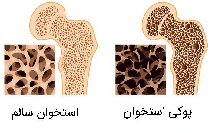 علل پوکی استخوان