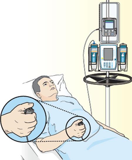 بی حسی با کنترل بیمار
