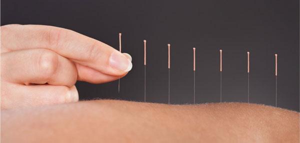 طب سوزنی برای مدیریت درد