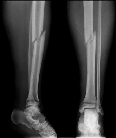 تشخیص شکستگی استخوان