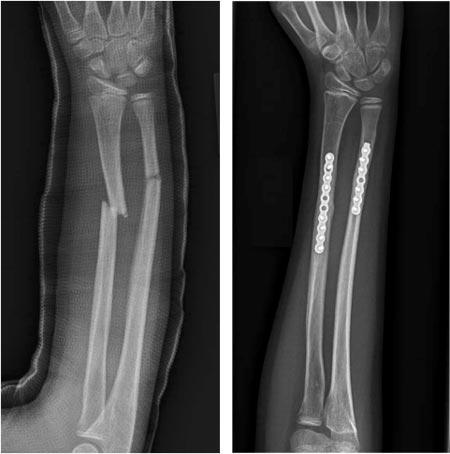 درمان شکستگی استخوان بلند