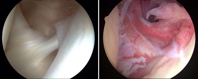 آرتروسکوپی شانه برای درمان شانه یخ زده