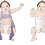 دررفتگی مادرزادی مفصل ران