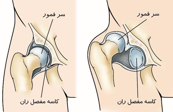 دررفتگی یا دیسپلازی مادرزادی مفصل ران