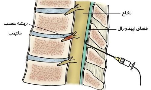 تزریق مفصل بین مهره ای پشتی در ستون فقرات کمری