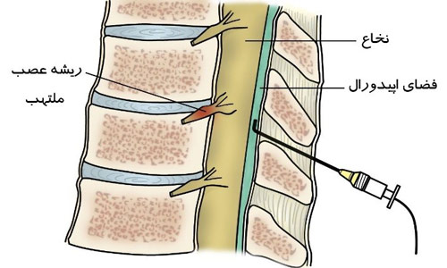 تزریق اپیدورال در ستون فقرات
