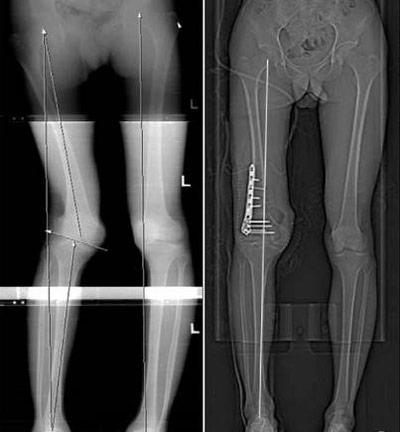 درمان جراحی پای پرانتزی