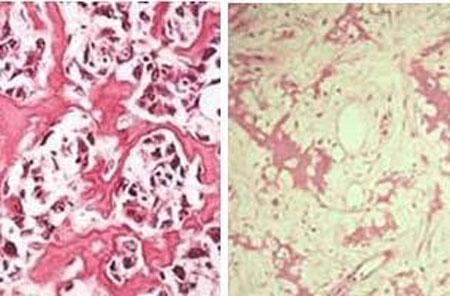 آناتومی سارکوم استخوانی
