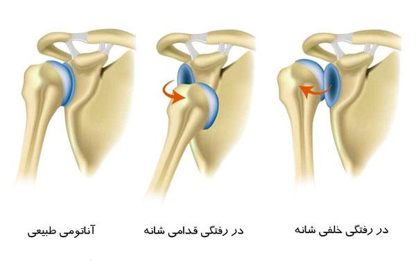 دررفتگی مکرر در مفصل شانه