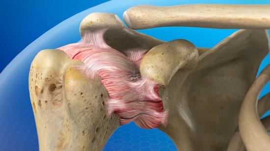 شانه منجمد یا کپسولیت چسبنده