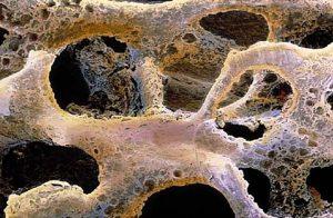 بیماری های متاستاتیک استخوان