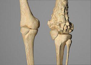 استئوسارکوم یا تومور بدخیم استخوانی