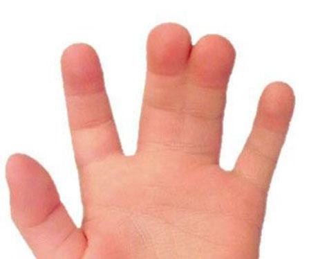 چسبیدن انگشتان به یکدیگر
